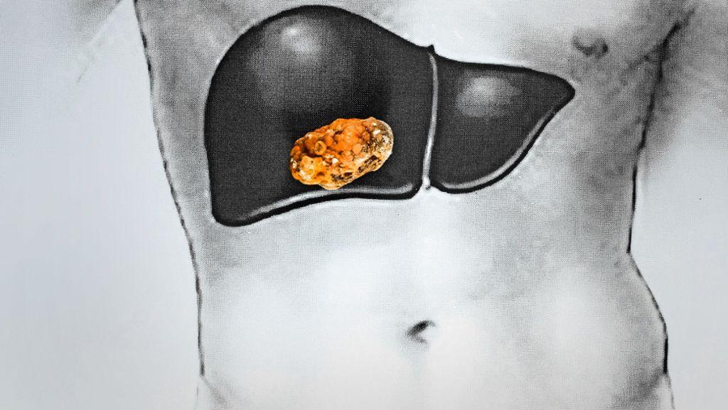 Bauchnabel gallen schmerzen nach op symptome innere