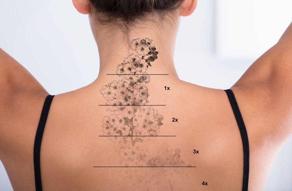 Probleme Mit Lasern Bleiben Tattoos Doch Für Ewig Wissen